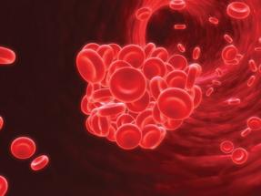 図:抗血小板薬