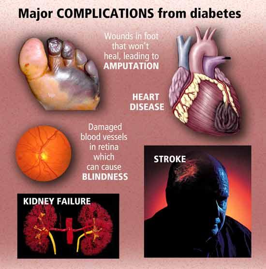 Chronic complications of diabetes mellitus
