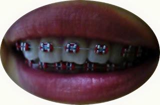 龍年開運牙套    助您好運龍總來