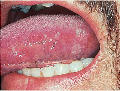 Hairy leukoplakia of the tongue in HIV infection