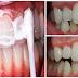 AYO BURUAN..!!! Bilas Gigi Anda dengan Campuran Ini dalam 5 Menit Tartar dan Plak Hilang dari Gigi Anda dan Nafas Pun Jadi Wangi !