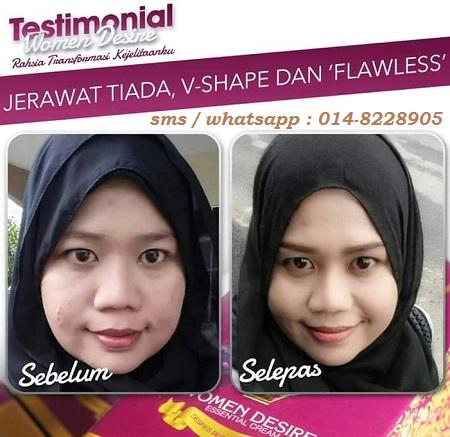 women desiree essential cream testi kulit cantik