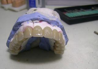 Prótesis dentales como solución