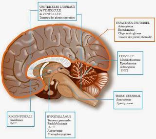 savoir tous sur Les Tumeurs Cérébrales
