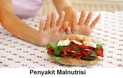 Apa itu malnutrisi?,Pengertian malnutrisi adalah: Penyebab, Pencegahan penyakit
