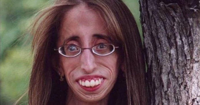 Η «πιο άσχημη γυναίκα του κόσμου» ίσως είναι η ομορφότερη που είδατε ποτέ! (Βίντεο)