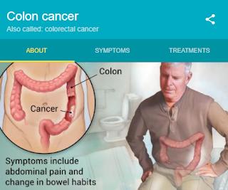 Colon Cancer: Polyps, The Main Precursors