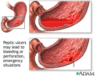 Gastric Ulcer Overview