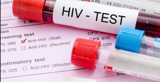 Anti Hiv Negatif Çıkması Nedir?