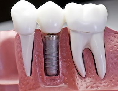 Trồng răng ở đâu tốt trên đường An Dương Vương