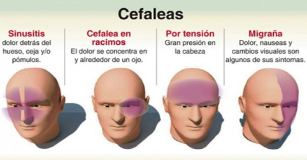 Como un dolor de cabeza revela que parte del cuerpo esta for Trata catarro 7 remedios caseros curar catarro comun