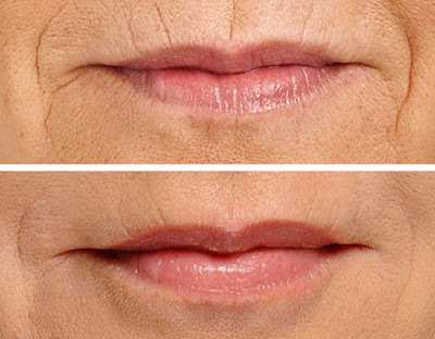 facial Folds corrected after Skin Fillers Treatment