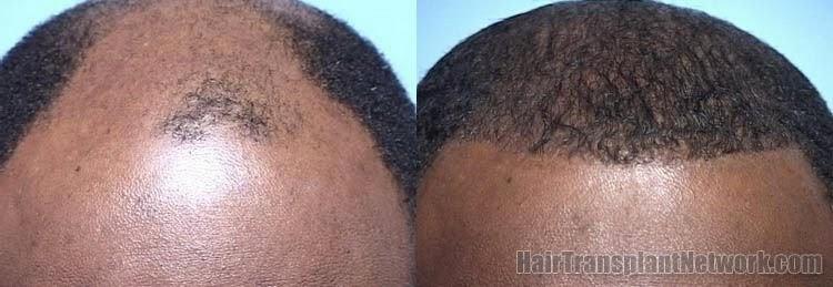 implant cheveux homme noir coiffures la mode de cette saison. Black Bedroom Furniture Sets. Home Design Ideas