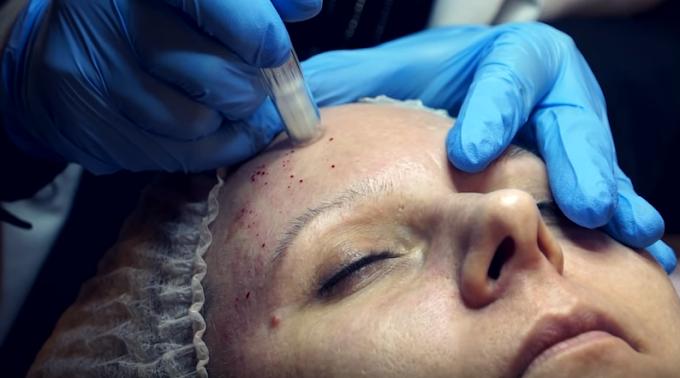 Τεχνική Dermapen για θεραπείες με λιγότερο ερεθισμό.