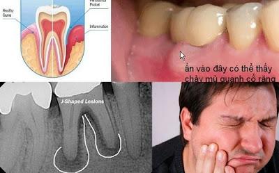 sau khi bọc răng sứ bị đau nhức là do đâu -2