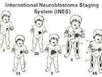 Neuroblastoma Symptoms in child
