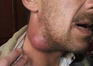 Obat Alami & Ampuh Menghilangkan Bengkak / Benjolan di Leher