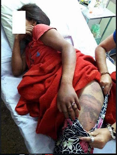 Sikkim woman beaten up by police in bijanbari darjeeling