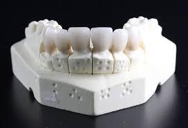 Amalan Dan Tabiat Salah Yang Boleh Merosakkan Gigi