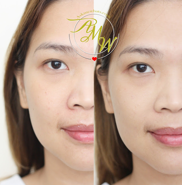 有利的专业毛孔前后照片,最大限度地减少化妆阴影2。
