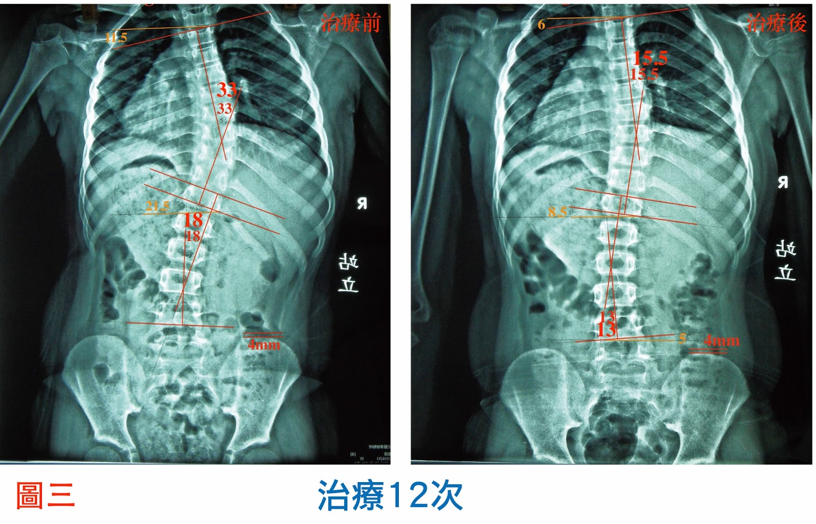 脊椎側彎, 脊椎側彎背架, 脊椎度數,脊椎側彎矯正, 脊椎側彎治療, , 脊椎側彎 復健