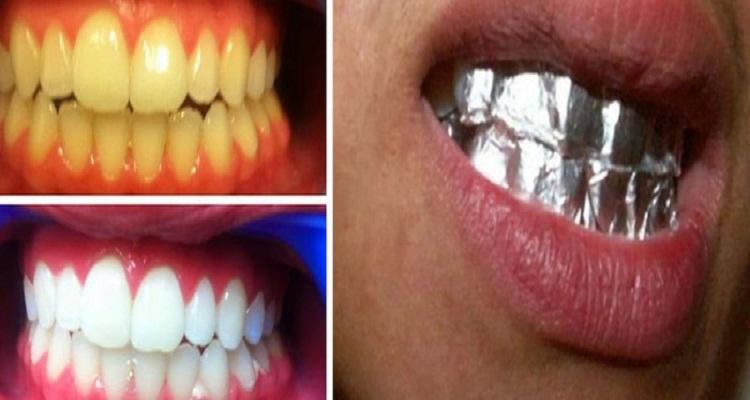 وصفة سحرية لتبييض أسنانك خلال ساعة فقط بورق الألومنيوم