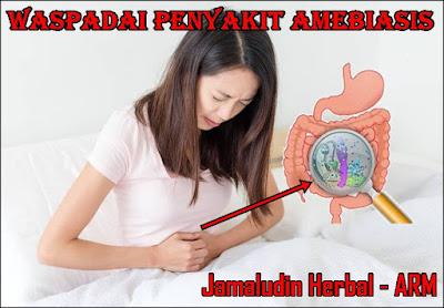 http://tilupuluhherbal.blogspot.com/2018/05/pengobatan-amebiasis-secara-tradisional.html