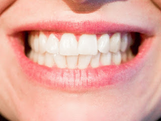 home remedies for white tooth