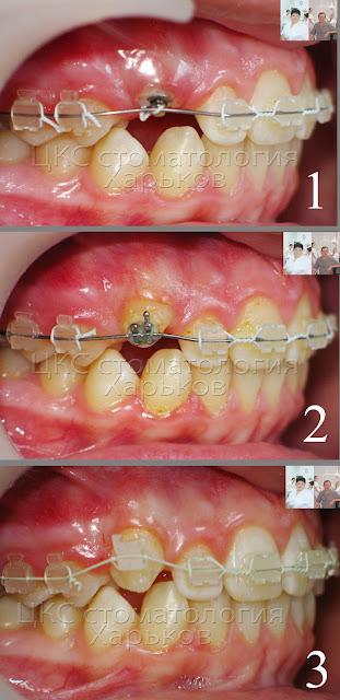направление ретинированного зуба в нормальное положение