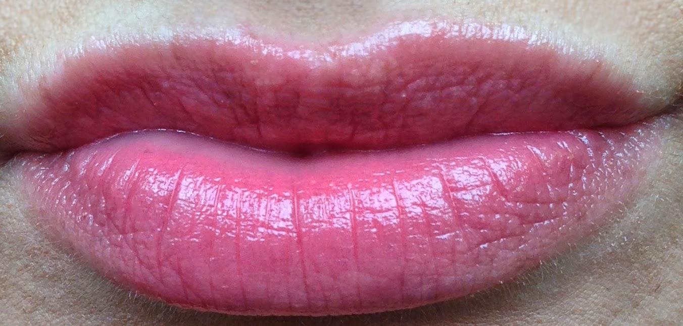 А хиалуронова киселина в устните благоевград