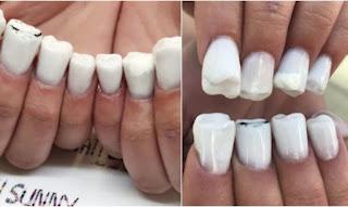 Ήρθαν τα νύχια σε σχήμα δοντιών και είναι η πιο άσχημη μόδα που βγήκε ποτέ