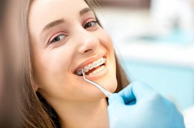 Jenis Kawat Dalam Pasang Behel gigi Yang Bisa Anda Pilih