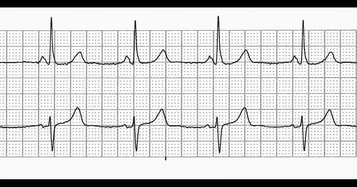 Float Nurse: EKG Rhythm Quiz 254