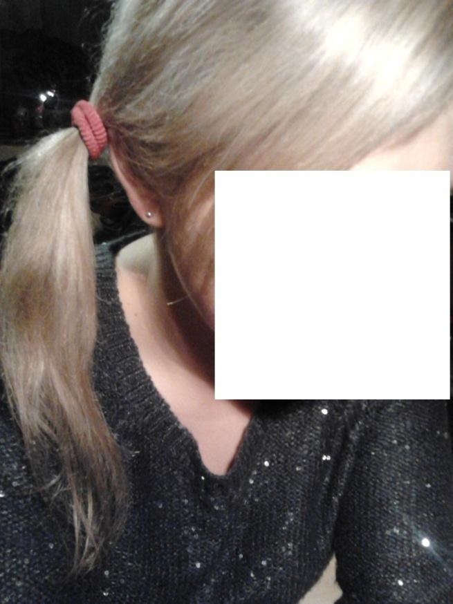 co robić na wypadające włosy