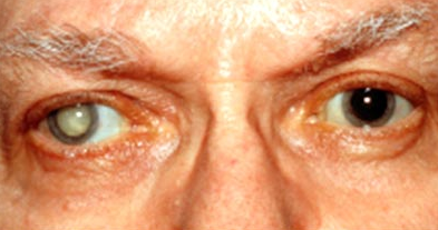 Mata normal dan katarak