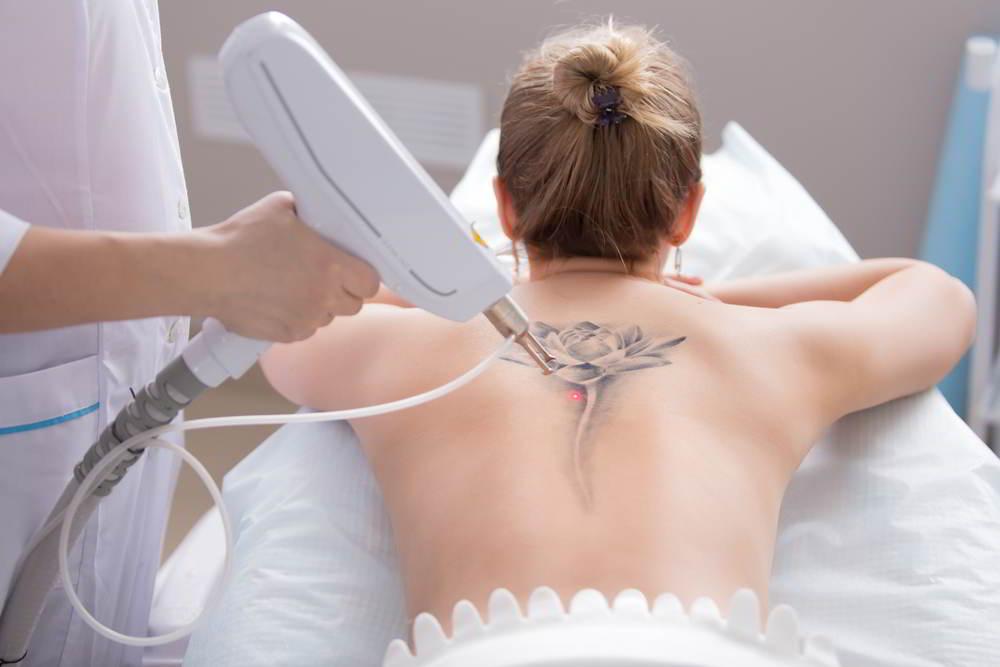 Eliminando un tatuaje con luz pulsada