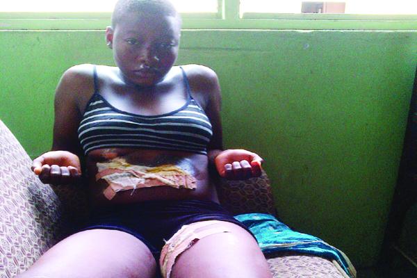 girl tortured hot iron aunt ketu lagos