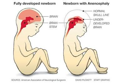kenapa asid folik penting buat ibu hamil