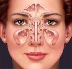cara ampuh mengatasi sinusitis akut