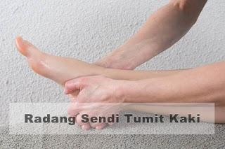 Obat radang sendi tumit kaki