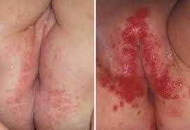 Obat gatal di selangkangan wanita