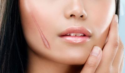 Tác dụng của collagen trong làm liền sẹo hiệu quả