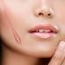 Tìm hiểu về tác dụng của collagen giúp làm liền sẹo hiệu quả