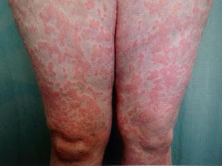 Triệu chứng bệnh nổi mề đay mẩn ngứa cấp tính