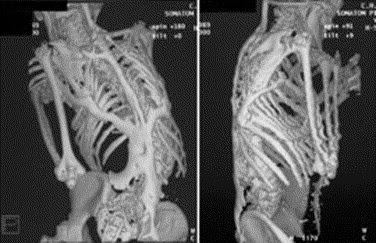 fibrodysplasia ossificans progressiva a review bellabonez