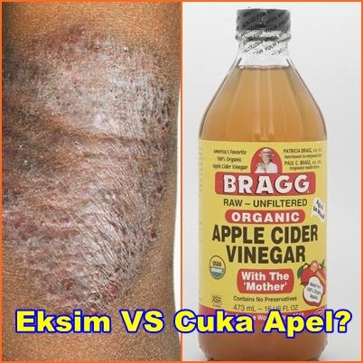 28 Manfaat Cuka Apel untuk Kulit, Rambut dan Kesehatan