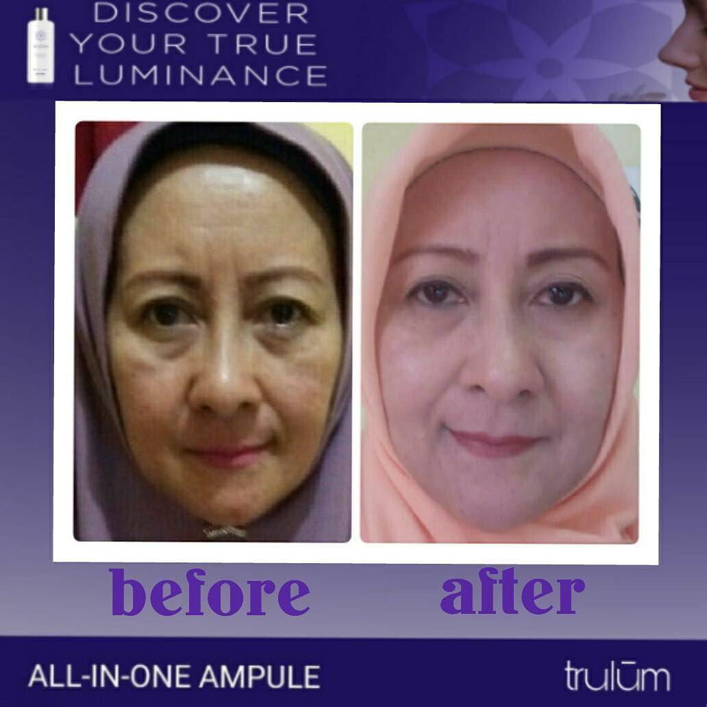 Jual Trulum All In One Ampoule Di Meranti, Asahan WA: 08112338376
