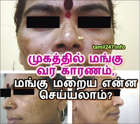 Mugathil Mangu sariyaaga enna seiyya vendum, முகத்தில் மங்கு வர காரணம், மங்கு மறைய என்ன செய்யலாம்?, மங்கு குணமாக சிகிச்சைகள்