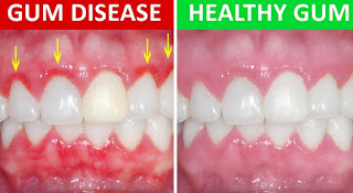 A comparison image of a healthy gum and a gum disease picture