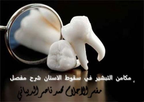اسرارالاحلام M1975n Dreams مكامن التبشير في سقوط الاسنان في